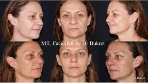 Fotos de antes y después de Lifting Facial miniinvasivo Láser®
