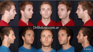 Rinoplastia y mentoplastia (Cirugía Plástica de nariz y mentón)
