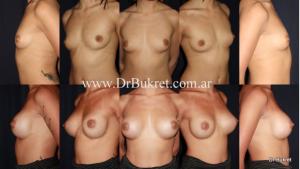 Aumento mamario con implantes microtexturizados 300 cc